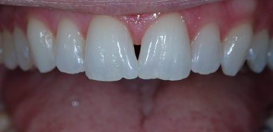 Cosmetic Composite black triangle after