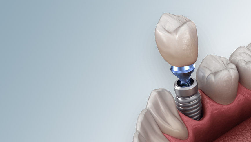 Cost of Dental Implants explained