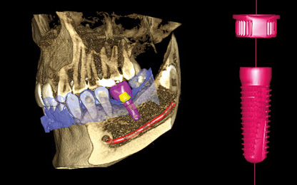 Cone Beam CT implant treatment planning