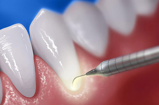 periodontal laser therapy gum disease