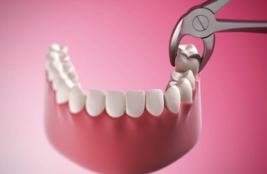tooth extraction Roseville oral surgery 2